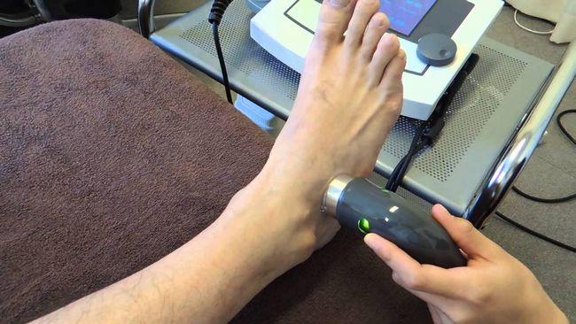 足首の捻挫新宿区